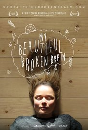 Watch Movie my-beautiful-broken-brain